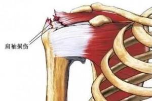 湘潭市中医医院成功开展肩关节镜下肩袖修复术