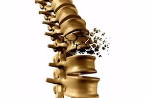 为何脖子一转就响僵硬似木头医生每个人都会经历